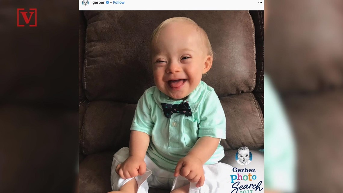 c30dbf4ef Mom of first Gerber baby with Down syndrome: 'Humanity is better than I  thought' | 11alive.com