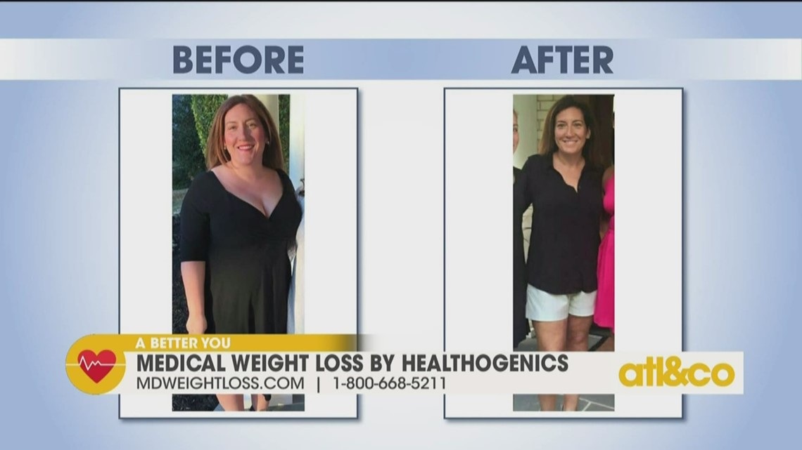 10-Week Transformation with Medical Weight Loss | 11alive.com