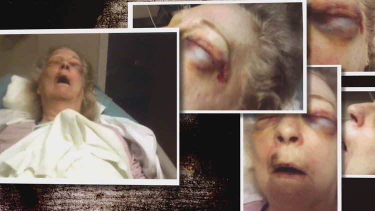 'Shepherd Hills nursing home, what about Shepherd kills nursing home?': Husband alleges neglect killed his wife