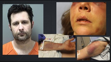 Man gets time served and anger management for beating his wife, by judge with history of lenience