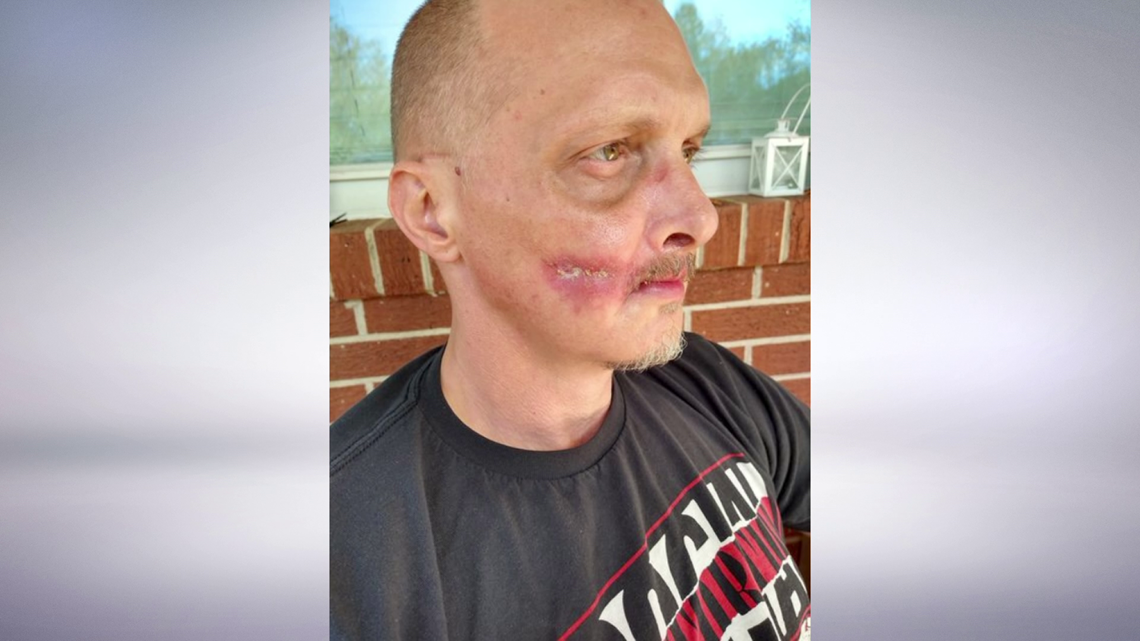Road rage victim still healing months later, as medical expenses approach $100K