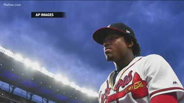 Ronald Acuna Jr. back at the top of lineup tonight
