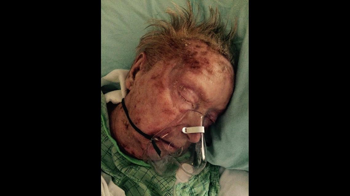 Eaten Alive'   Woman known for beauty suffers horrific death