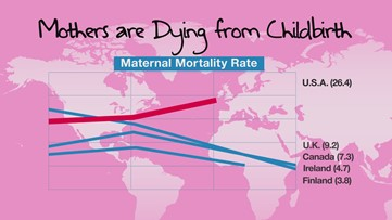 American moms are dying in childbirth
