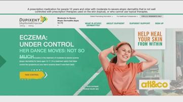 Eczema: Under Control