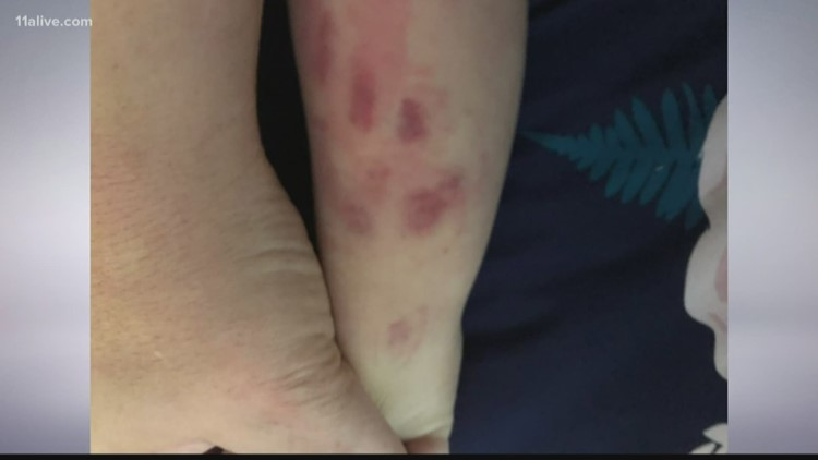 Father calls for changes after he says his 3-year-old got off school bus with bruises