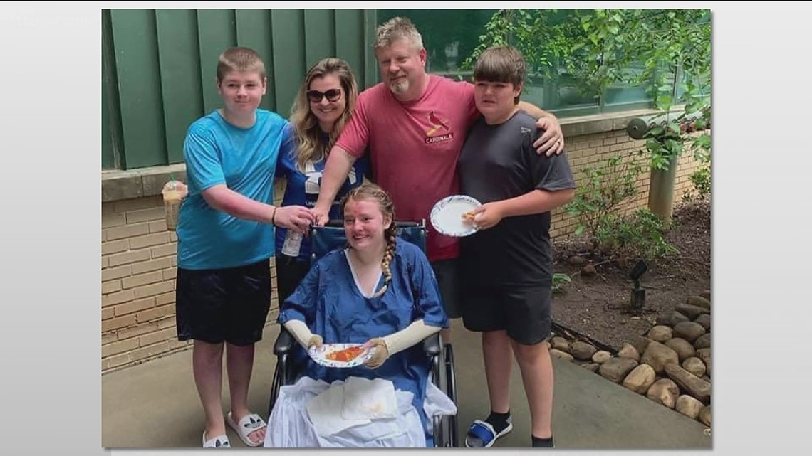 Teen hurt in Lake Lanier boat explosion takes first steps since the accident