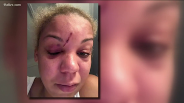 Buckhead club manager tased in the face by off-duty Atlanta officer