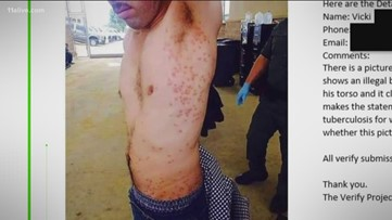 Verify: Did an immigrant cross into the US illegally with smallpox?