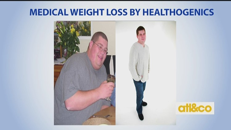 Lose weight before after pictures picture 8