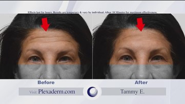 Get rid of wrinkles with Plexaderm