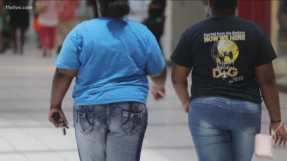 Study suggests link between obesity, COVID-19 death risk
