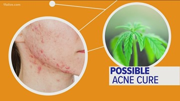 Can CBD oil really help with acne?