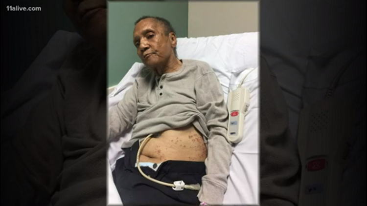 Vietnam vet covered in ant bites at VA facility before he died in Atlanta, family says