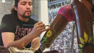 Local artists personalize casts, prosthetics for Children's patients