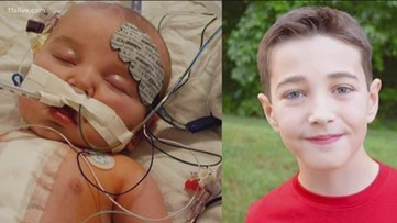Patients with congenital heart defect share photos for awareness week